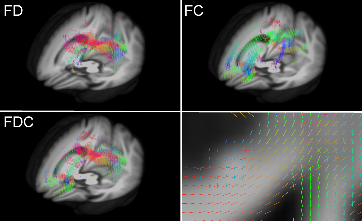 Figure 2. White matter property including splenium of corpus callosum (left) and figer bundles (right) during the course of Parkinson's Disease.